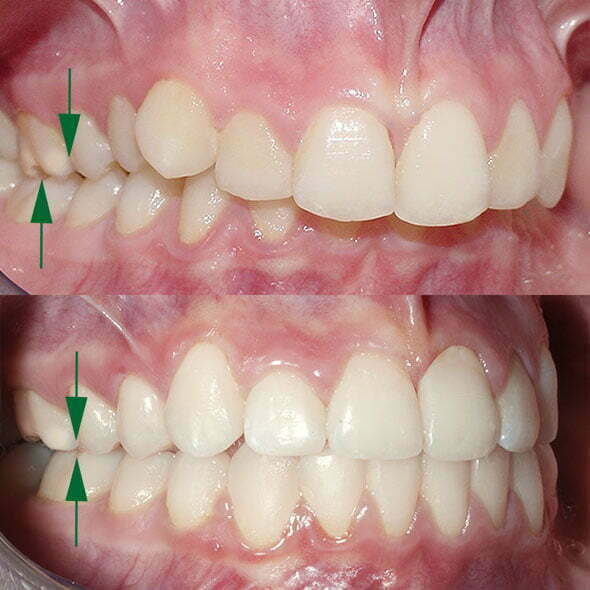 My teeth stick out | Evolution Orthodontics
