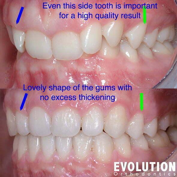 Teeth Lean Back | Evolution Orthodontics